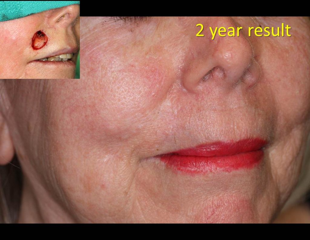 Lip_Flap-repair-00041-1024x791 Reconstructive Surgery Houston Dermatologist