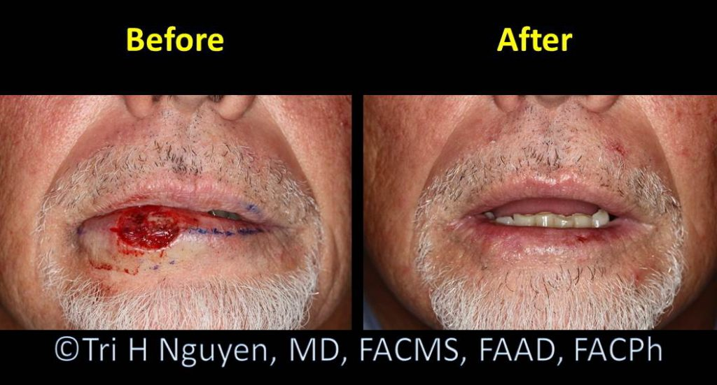 Lip_mother-nature-healing-00012-1024x551 Reconstructive Surgery Houston Dermatologist