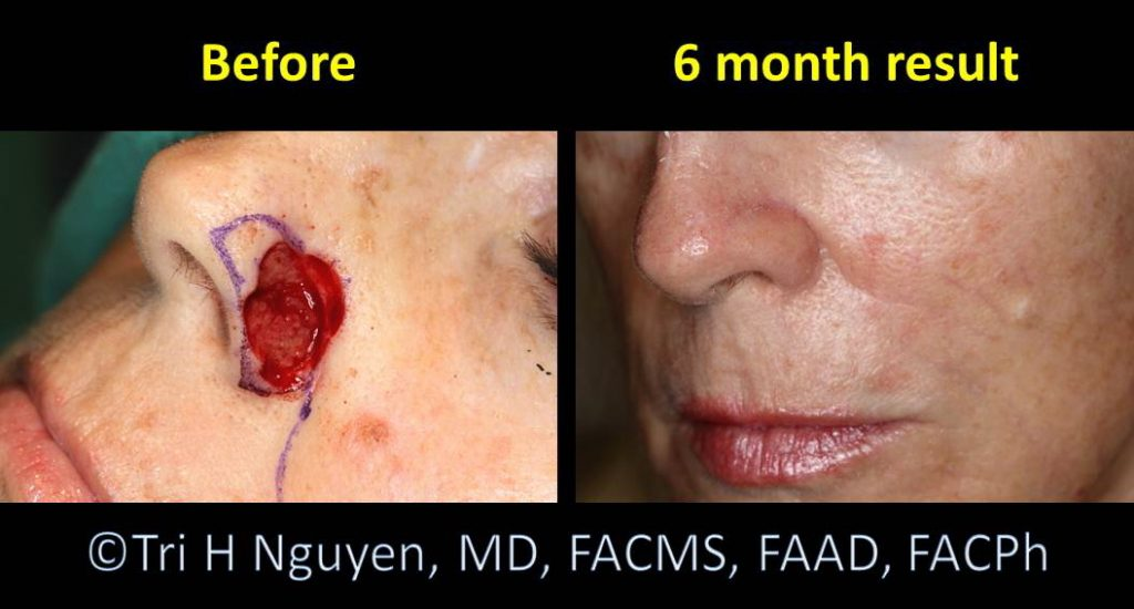 Nose_flap-repairs-0012-1024x550 Reconstructive Surgery Houston Dermatologist