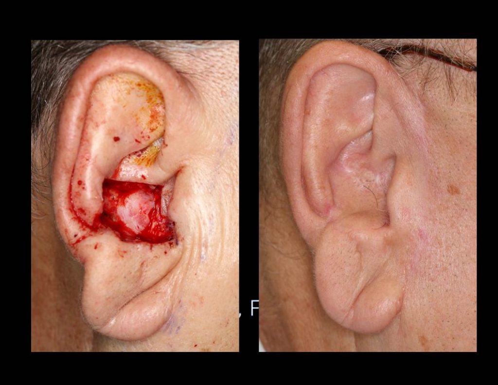 Preauricular-cheek_flap-repairs-0006-1024x791 Reconstructive Surgery Houston Dermatologist