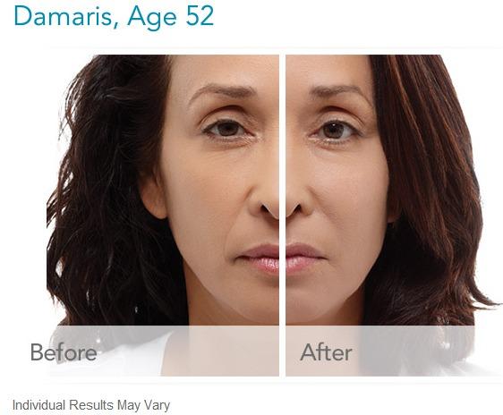 radiesse-before-and-after-gallery What is Radiesse Dermal Filler? Houston Dermatologist