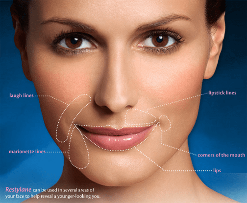 restylane What are the risks of Restylane dermal filler? Houston Dermatologist