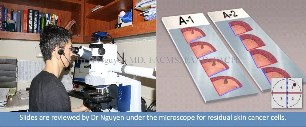 Mohs-slide-stills-microscope-watermark-1024x426 Mohs Micrographic Surgery Houston Dermatologist
