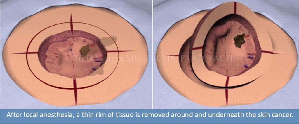 Mohs-slide-stills-stage-1-watermark-1024x427 Mohs Micrographic Surgery Houston Dermatologist