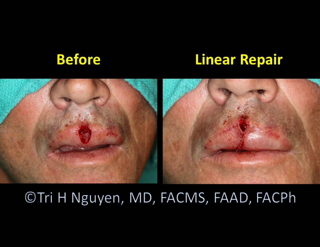 Lip-wound_Linear-repair-00041-1024x791 Reconstructive Surgery Houston Dermatologist
