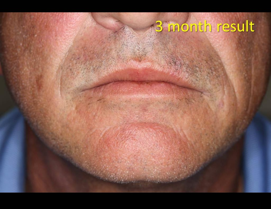 Lip-wound_Linear-repair-00052-1024x791 Reconstructive Surgery Houston Dermatologist
