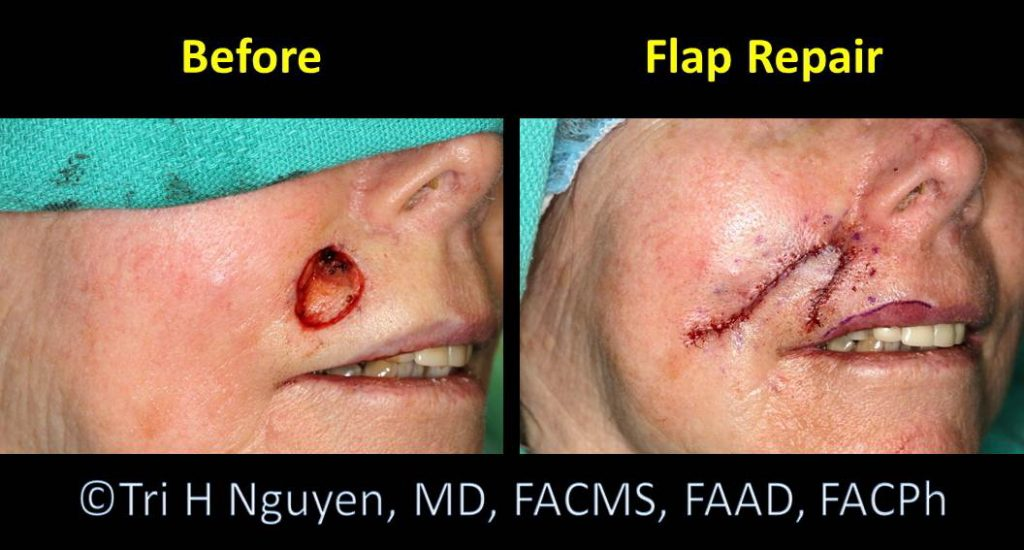 Lip_Flap-repair-0003-1024x550 Reconstructive Surgery Houston Dermatologist