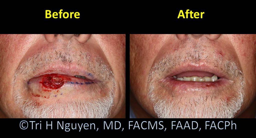 Lip_mother-nature-healing-00012-1024x551 Reconstructive Surgery Houston Dermatologist