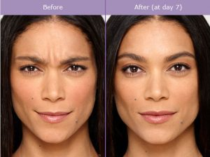 botox-before-and-after-photo-300x224 What is Botulinum Toxin Type A (Botox)? | The Woodlands, TX Houston Dermatologist