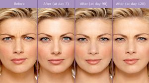 botox-before-and-after-photos-300x167 What is Botulinum Toxin Type A (Botox)? | The Woodlands, TX Houston Dermatologist