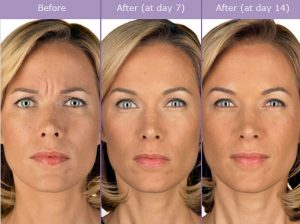 botox-before-and-after-picture-300x224 What is Botulinum Toxin Type A (Botox)? | The Woodlands, TX Houston Dermatologist
