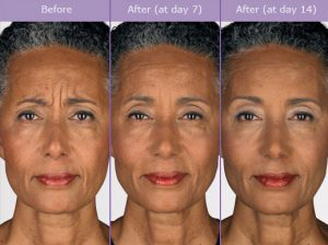 botox-before-and-after-pictures-300x224 Botox Before and After Photos Houston Dermatologist