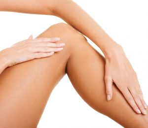 Patient-treated-for-varicose-veins-and-spider-veins-300x260 What are Spider Veins? Houston Dermatologist