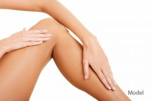 plastic-surgeon-300x200 Spider Vein (Sclerotherapy) Treatment Recovery Houston Dermatologist