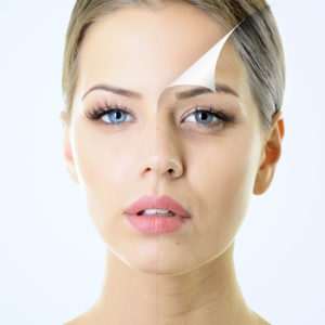 shutterstock_156646856-300x300 What is a Chemical Peel? Houston Dermatologist
