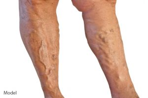 shutterstock_67825156-300x199 Varicose Vein Treatment Before and After Photos Houston Dermatologist