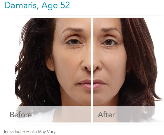 radiesse-before-and-after-gallery What is Radiesse Dermal Filler? Houston Dermatologist