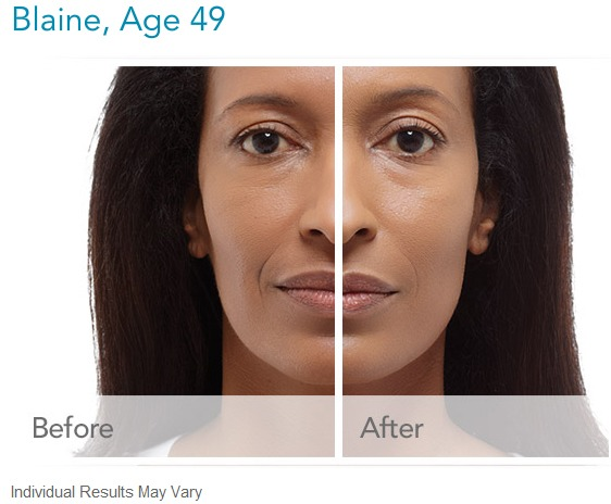 radiesse-before-and-after-images How much does Radiesse Facial Filler cost? Houston Dermatologist