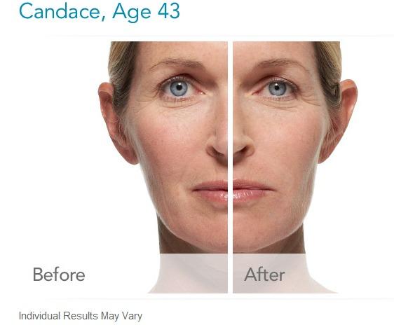 radiesse-before-and-after-photos Radiesse Dermal Filler Before and After Photos Houston Dermatologist