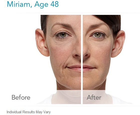 radiesse-before-and-after-picture Radiesse Dermal Filler Before and After Photos Houston Dermatologist