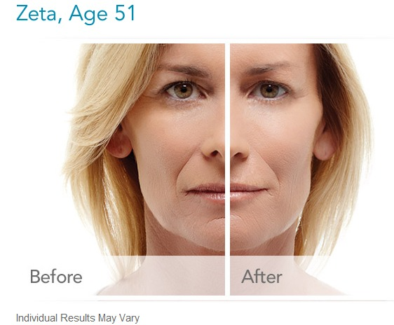 radiesse-before-and-after-pictures How long does Radiesse Dermal Filler Last? Houston Dermatologist