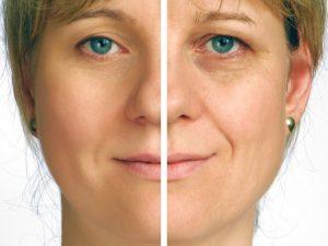 shutterstock_24655996-300x225 Dysport Before & After Photos Houston Dermatologist