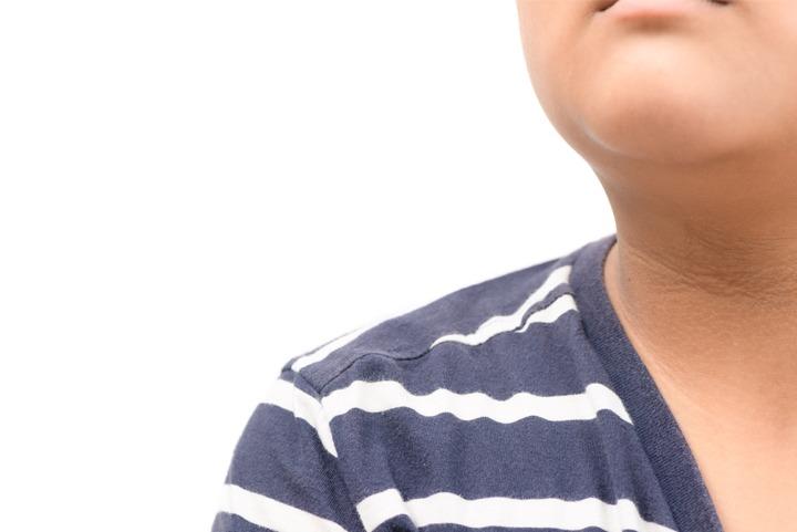 childs-neck Houston Dermatologist FAQ: What is Acanthosis nigricans? Houston Dermatologist