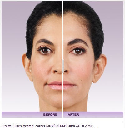 juvederm-3 How to remove or prevent fine lines on your face Houston Dermatologist