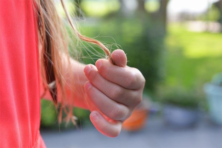 Alopecia-Areata-Hair-Loss-Men-Women-Causes-Houston-TX-Dermatologist Houston Dermatologist FAQ: Alopecia Areata (Hair Loss) in Men And Women Causes Houston Dermatologist