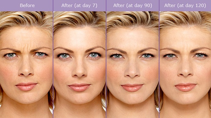 botox-before-and-after-photos Botox Injectable Uses and Possible Side Effects Houston Dermatologist