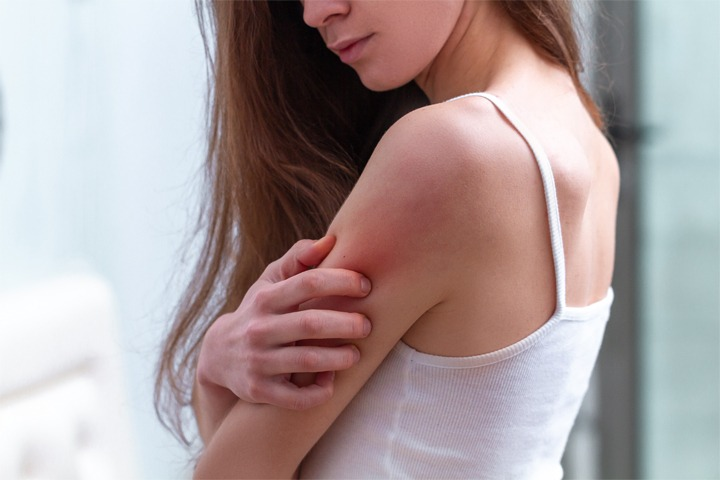 arm-itch Houston Dermatologist FAQ: Ways to Get Relief From Chronic Hives Houston Dermatologist