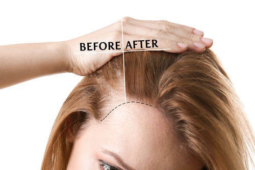 Alopecia-Areata-Hair-Loss-Men-Women What Causes Alopecia Areata (Hair Loss)? Houston Dermatologist